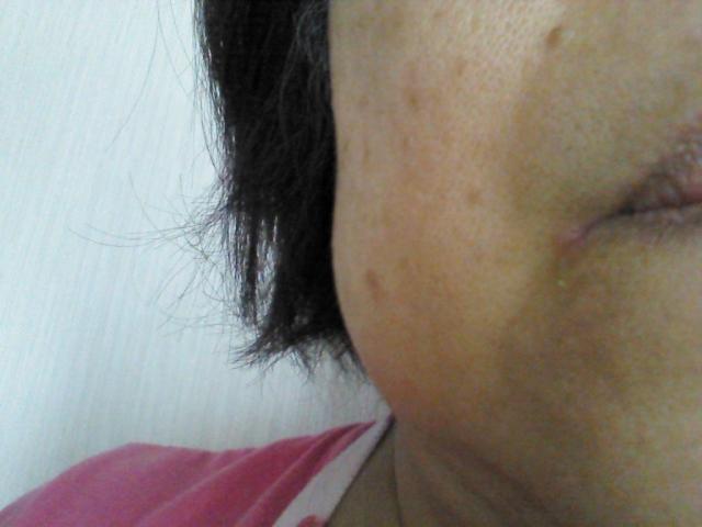 優しくムラなく。肝斑のレーザー治療が可能に「レーザートーニング」