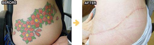 形成外科的手技によるタトゥー・入れ墨除去の症例