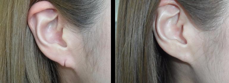 耳垂裂の症例