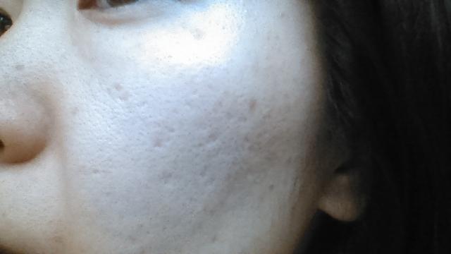 シミ、そばかす、毛穴、肌のハリなどをトータルに改善「フォトRF」